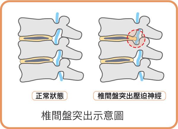 椎間盤突出示意圖