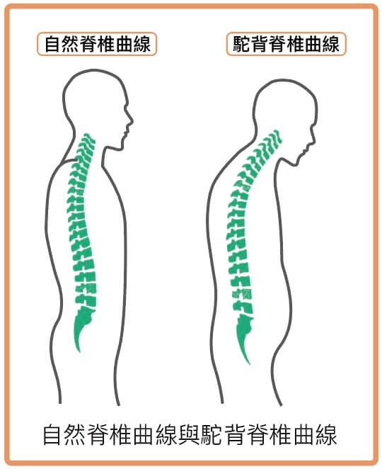 自然脊椎曲線與駝背脊椎曲線